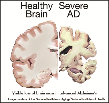 Healthy Brain / Severe AD